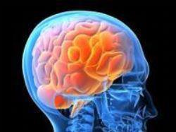 brain-1a